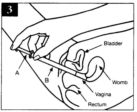 diagram of the penis in the vagina picture 14