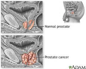 sintomas ng prostate cancer picture 14