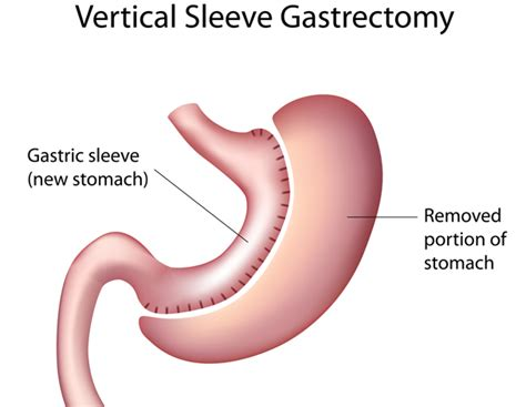 fatty liver disease caused by gastric byp surgery picture 9
