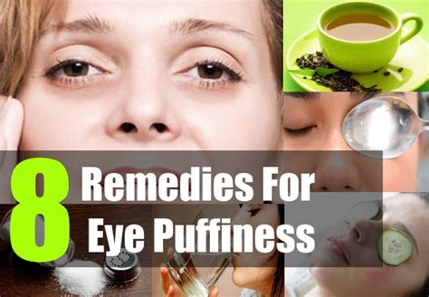 herbal remedies for eyes picture 6