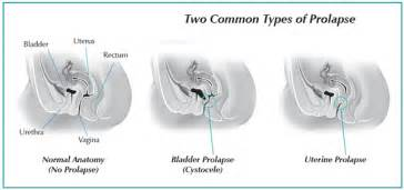 bladder prolaspe picture 6