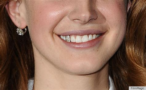 gold silver teeth picture 11