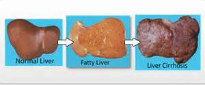 fatty liver infiltration picture 11