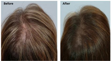 can msm cause hair loss picture 11