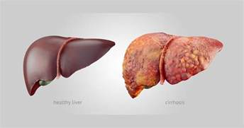 what causes sclerosis of the liver picture 18