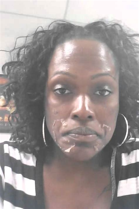 chemical ls on african american skin picture 3