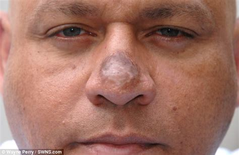 dr michael gray acne scar removal picture 15