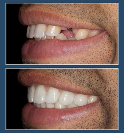 new york tooth whiten picture 7