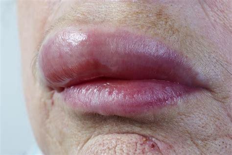 food allergy lip swollen picture 14