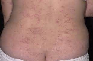 is eczema bacterial picture 1