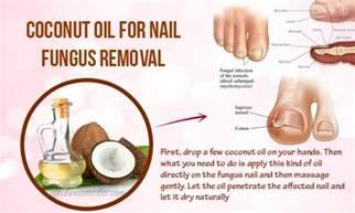 coconut oil fungus toe nail picture 5
