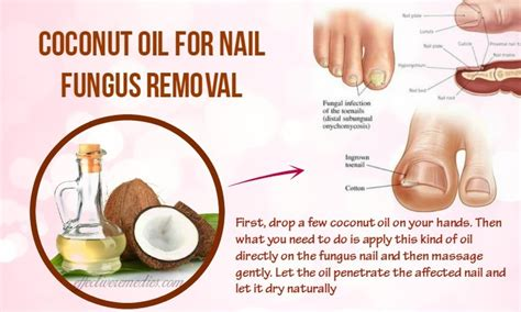 coconut oil fungus toe nail picture 1