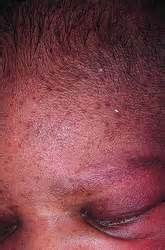 melanosis of the skin picture 18
