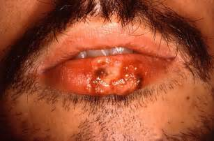 herpes in the mouth picture 2