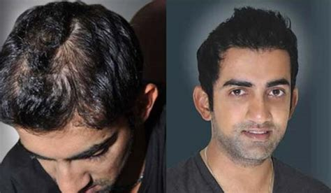 pathan hair remove xxnxx picture 13