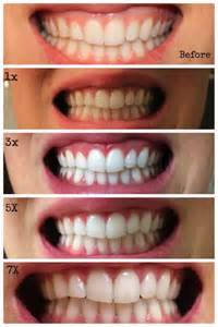 brush teeth with pineapple to whiten teeth picture 6
