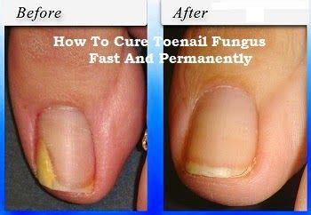 circulation and toenail fungus picture 15