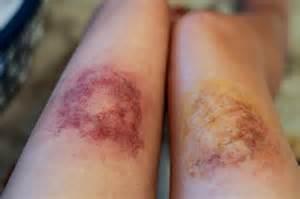 bruises picture 2