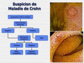 sympthoms of colon cancer picture 17