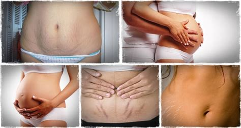 how to get make stretch marks go away picture 1
