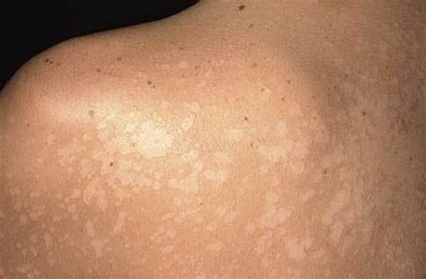 skin cancer symptoms early stages picture 11