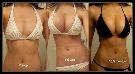 breast augmentation doctor carmel picture 21
