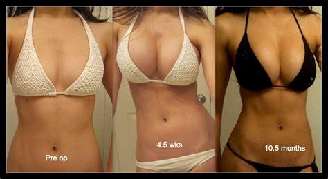 dallas breast enlargement surgery picture 18