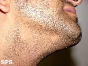alopecia hair loss picture 1