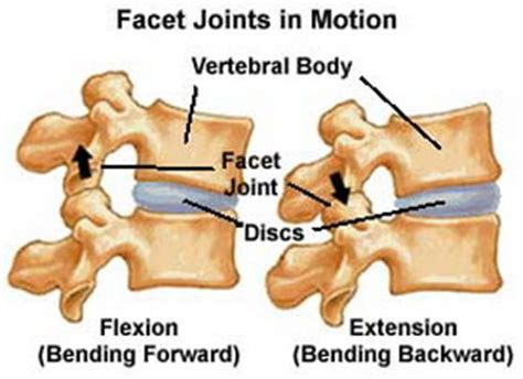 facet joint arthropathy picture 7