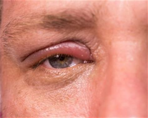 herpes in the eyes symptoms picture 10