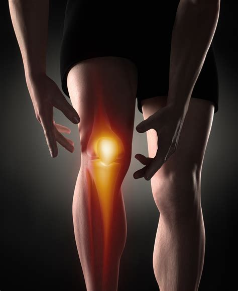 arthroscopy of knee joint picture 11