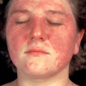 flaky skin and rosacea picture 10