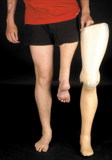 amputee women leg prosthesis picture 14