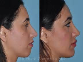 skin needling in los angeles picture 15