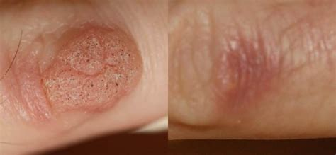 removal of warts on skin picture 14