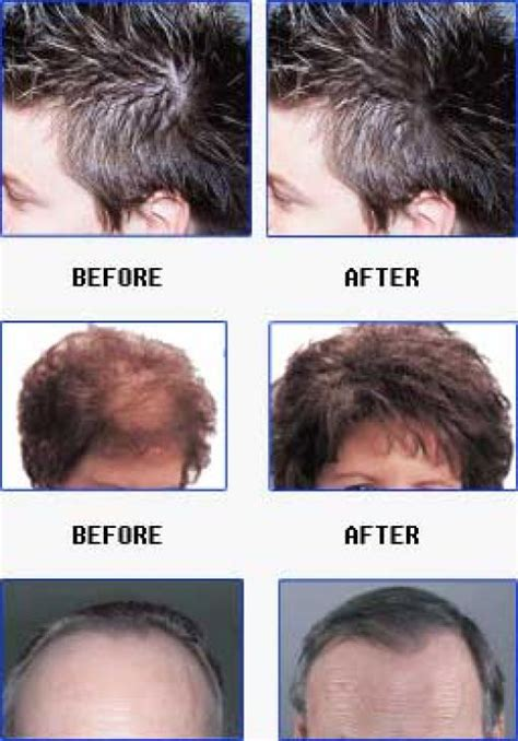 thyroid hair loss picture 3