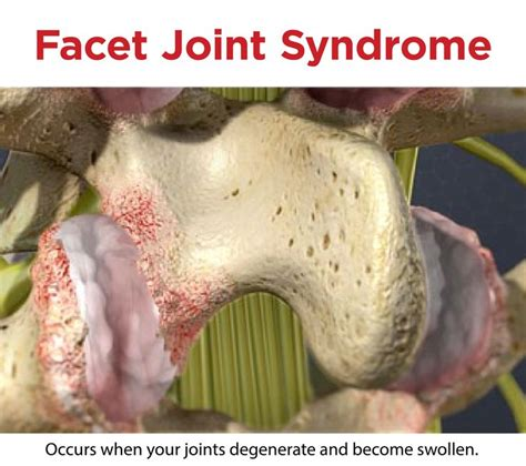 best future treatment for facet joint dysfunction picture 10