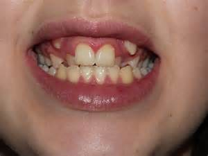 do canine teeth grow back picture 9