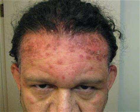 allergic reactions hair dye picture 11