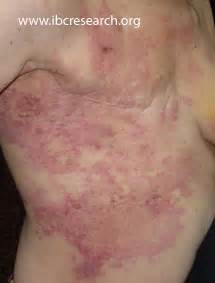 breast cancer skin mets to back pictures picture 1