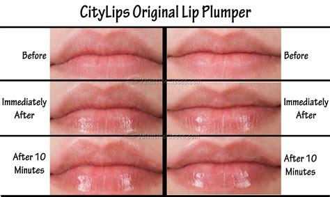 lip venom and famous barr picture 2