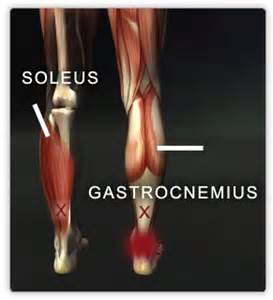 first degree gastrocnemius muscle strain picture 6