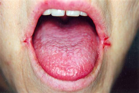 clotrimazole blistered lips picture 1
