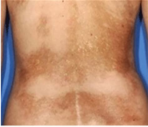 causes of changes of skin condition picture 8