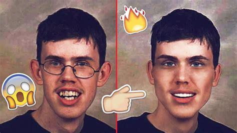 men acne picture 11