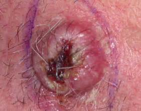 advanced squamous cell skin cancer picture 6