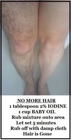 using iodine and oil hair removal picture 8