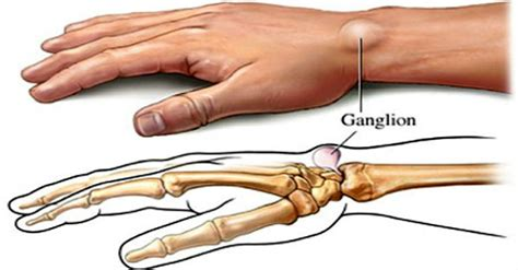 coconut oil for ganglion cyst picture 6