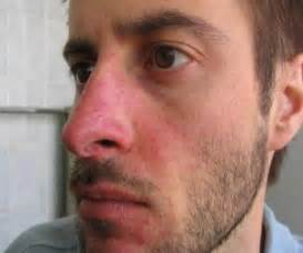 bactrim use for acne picture 9