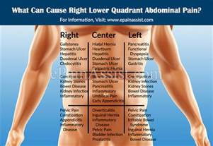right quadrant pain in colon cancer picture 2